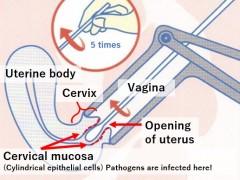 female: pelvic examination
